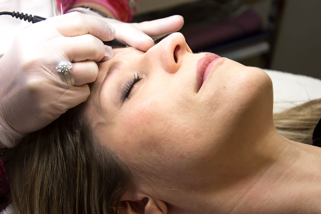 Electrolysis Laser Clinic Sudbury Home